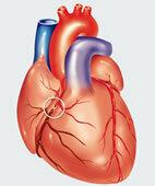 Myokardinfarkt: Verschluss eines Herzkranzgefäßes
