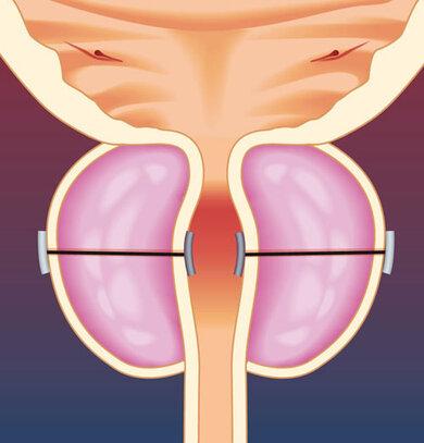 Implantate ziehen die Prostatalappen zusammen, so dass die Harnröhre sich wieder weitet