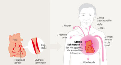 Eine Herzkranzgefäßverengung kann verursacht typischerwesie Herzschmerzen