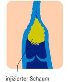 Verödung der Krampfader: Der Schaum führt zur Entzündung, diese zum Gefäßverschluss