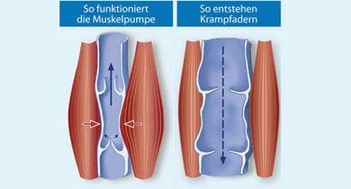 So hilft die Muskelpumpe, das Blut in den Venen zum Herz zu befördern