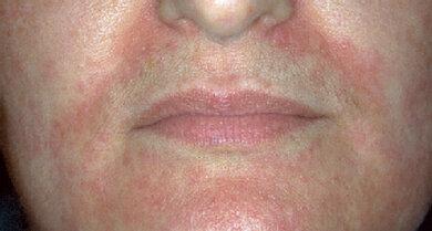 So kann eine periorale Dermatitis aussehen