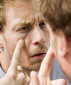 Gelbe Augen können ein Hinweis auf eine Leberentzündung sein