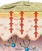 Psoriasis: Die raschere Wanderung der Zellen führt zu einer vermehrten Schuppung