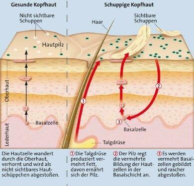 Vermehrt sich der Pilz Malassezia furfur auf der Kopfhaut, können sich sichtbare Schuppen bilden. Eine gesteigerte Aktivität der Talgdrüsen kann diese Vorgänge begünstigen