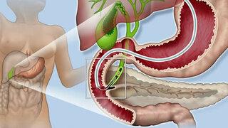 Endoskopische Entfernung eines Gallensteins aus dem Gallengang: ERCP