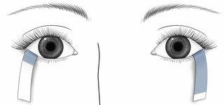 Schirmer Test (Augenflüssigkeitsmessung)