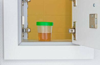 """Viele Praxen haben diskrete """"Schleusen"""" zum Abgeben der Urinproben"""