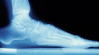 Röntgenaufnahme vom Fuß