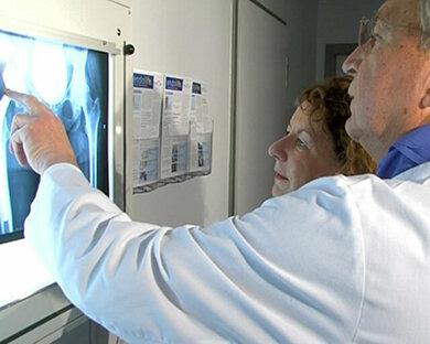 Röntgen je nach gezielter Fragestellung trägt zur Diagnose bei Osteoporose bei