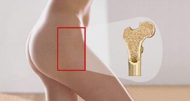 Die Therapie bei Osteoporose hilft auch weiteren Knochenbrüchen vorbeugen