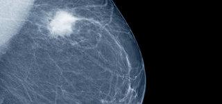 Mammographie einer Brust mit Knoten