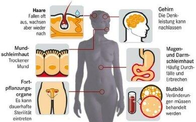 Einige mögliche Nebenwirkungen einer Chemotherapie