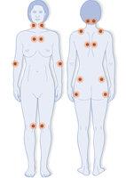 Tender points: Schmerzempfindliche Druckpunkte bei Fibromyalgie
