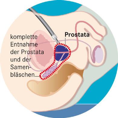 Bei der radikalen Prostatektomie wird das rot eingekreiste Gewebe entfernt