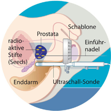 Brachytherapie: Die Bestrahlung von innen über winzige radioaktive Stäbchen