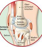 Schleimbeutel befinden sich an vielen Stellen im Körper, zum Beispiel am Kniegelenk