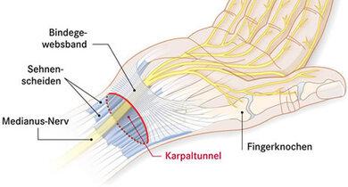 Der Karpalkanal (rot umkreist) liegt im Handgelenksbereich. Durch ihn laufen viele Sehnen und der Medianus-Nerv