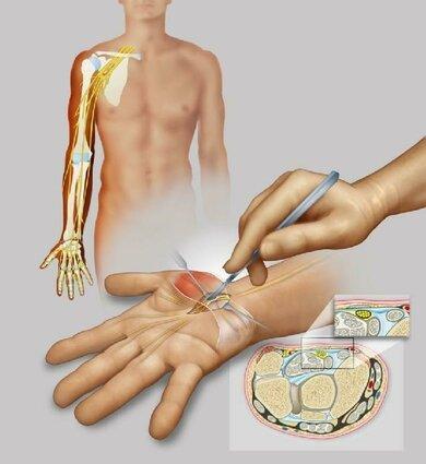 Operation: Der Arzt spaltet das Bindegewebsband über dem Karpalkanal