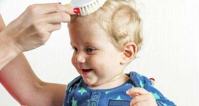 Die Kleinsten kann es treffen: Beim Losen-Haar-Syndrom bleibt das Haar dünn, später wächst es kräftiger