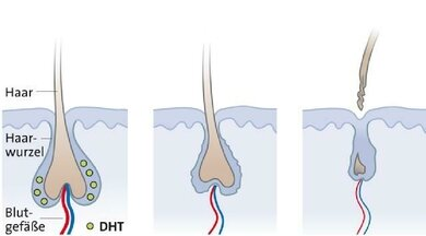 Androgenetische Alopezie: Die Haare reagieren überempfindlich auf das Geschlechtshormon Dihydrotestosteron (DHT), sie fallen rascher aus