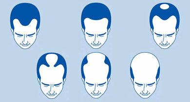 Männlicher Haarausfall, anlagebedingt: Es beginnt mit der berüchtigten M-Form