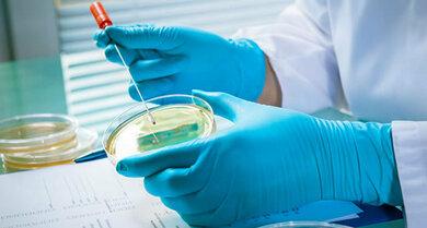 Pilzkultur im Labor