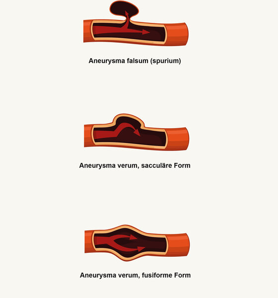 Aneurysma verum, fusiforme Form