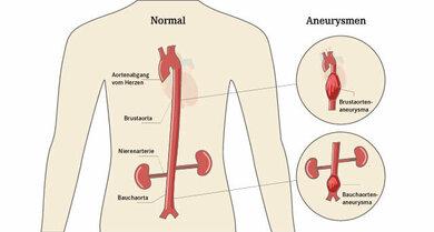 Darstellung über den Verlauf der Hauptschlagader (Aorta)