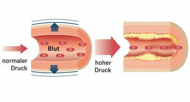 Bluthochdruck fördert Gefäßverkalkungen