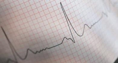 Herzstromkurve (EKG)