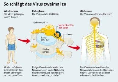 Herpes am kommt rücken woher Herpes auf