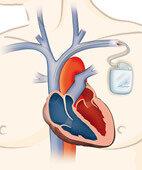 Manchmal die Lösung: Ein Herzschrittmacher