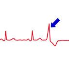 Eine Extrasystole im EKG