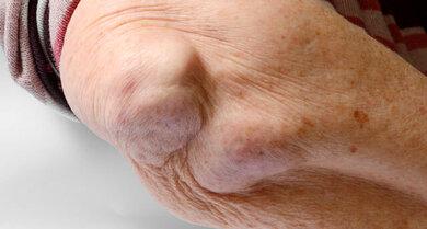 Bei manchen Patienten treten sogenannte Rheumaknoten auf