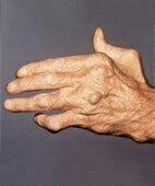 Bei einer rheumatoiden Arthritis können sich Fehlstellungen der Gelenke entwickeln