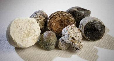 Gallensteine können ganz unterschiedlich gefärbt sein, wie dieses Bild zeigt