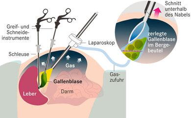Laparoskopische Operation: Über kleine Schnitte gelangen die Instrumente zur Gallenblase