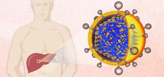 Hepatitis-B (Schematische Darstellung)