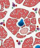 Leberzirrhose: Als Folge der chronischen Entzündung vermehrt sich das Bindegewebe (weiß) zwischen den Leberläppchen (rot). Diese birgt wiederum ein Risiko für die Entwicklung von Leberkrebs (hellrot stilisiert)