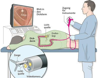 Bei der Darmspiegelung lassen sich auch die Vorstufen von Tumoren entfernen