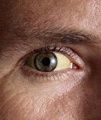 Eine Gelbfärung der Bindehaut kann auf eine Lebererkrankung hinweisen