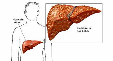 Meist entsteht Leberkrebs auf dem Boden einer vorgeschädigten, zirrhotischen Leber
