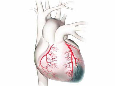 Ein Herzinfarkt wird durch den Verschluss eines Herzkranzgefäßes verursacht. In der Folge steigt der GOT-Wert