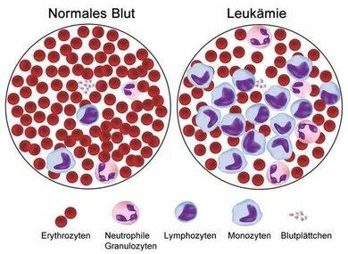 """Grafische Darstellung, wie ein Blutausstrich unter dem Mikroskop aussieht: Es finden sich rote Blutzellen (Erythrozyten, im Bild als rote Scheiben), verschiedene weiße Blutzellen (Leukozyten, im Bild hellblau und rosa) und Blutplättchen (Thrombozyten, kleine """"Streusel"""" im Bild)"""