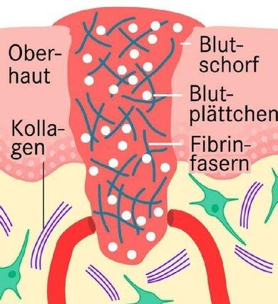 Beim Verschluss einer Wunde gerinnt das Blut. Fibrinogen wandelt sich in Fibrinfasern um und wird dabei verbraucht