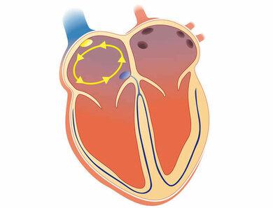 Bei Vorhofflimmern können sich Blutwirbel (gelbe Pfeile) im Vorhof bilden, und die Gefahr der Bildung eines Blutgerinnsels steigt an. Eine Erhöhung des INR-Wertes auf 2,0 bis 3,0 mithilfe von Medikamenten soll die Gefahr senken