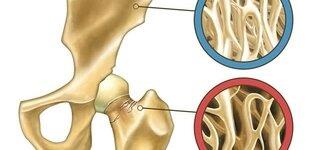 Illustration zeigt normalen Knochen und Osteoporose