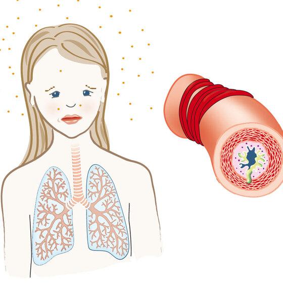 Atemwege bei Asthma