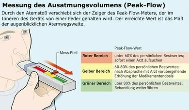 Die Peak-Flow-Messung zeigt, wie gut das Asthma unter Kontrolle ist